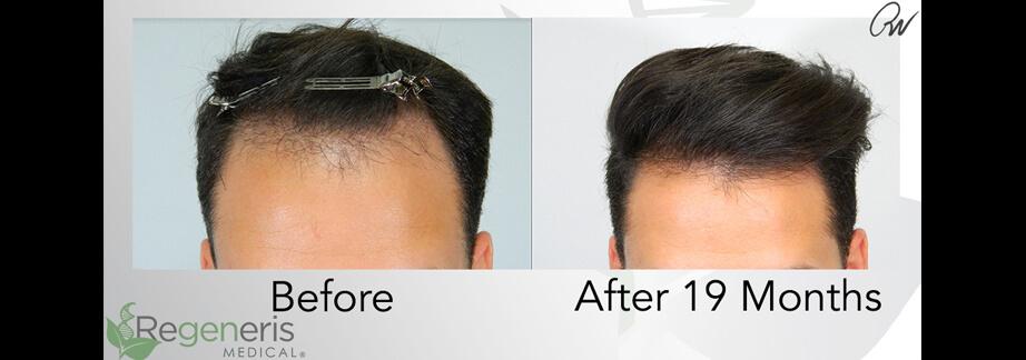 Stem Cell Hair Restoration Treatment Results