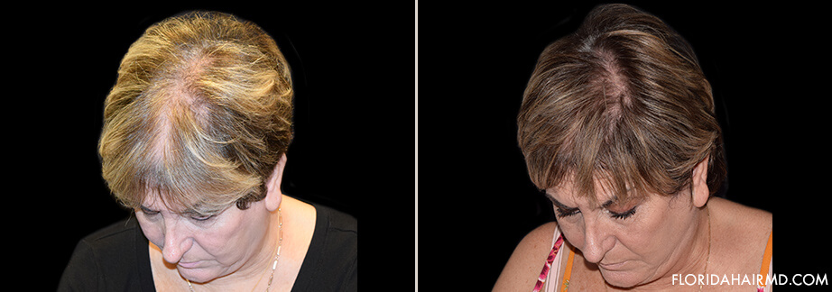 Stem Cell Hair Restoration Before And After