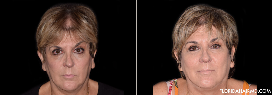 Stem Cell Hair Restoration Before & After