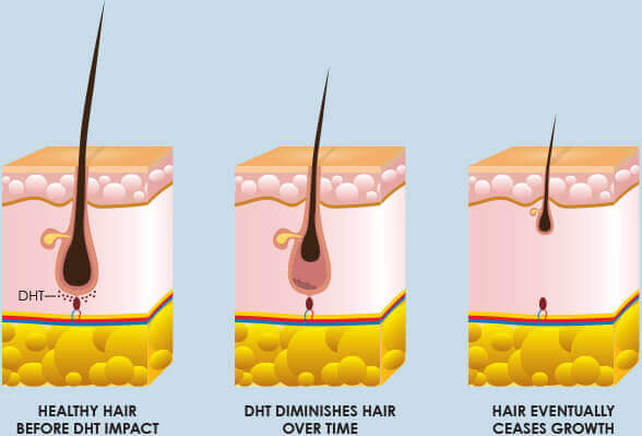DHT & Hair Loss