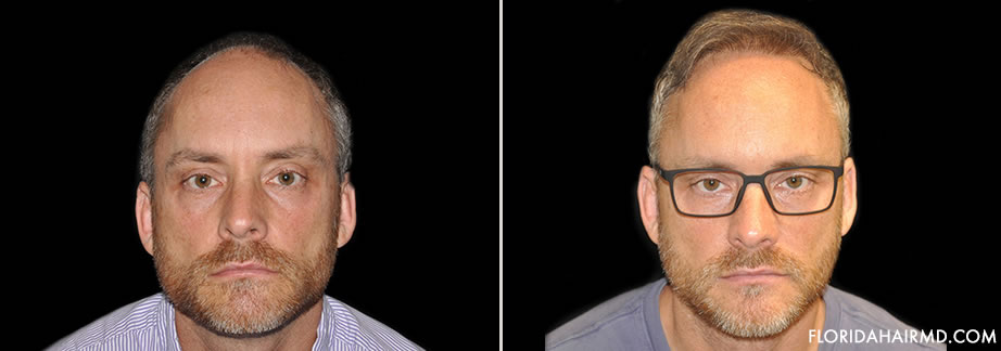 Hair Restoration Before & After