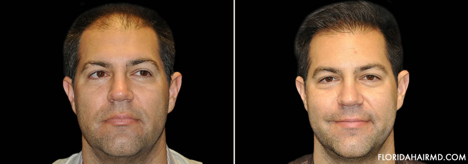 Before & After Hair Restoration
