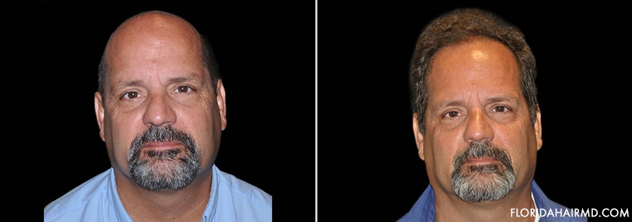Hair Restoration Results In Florida