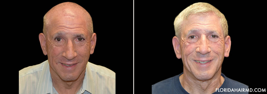 Hair Restoration Surgery Before & After