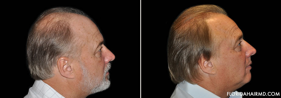 Hair Restoration Surgery Results In Florida