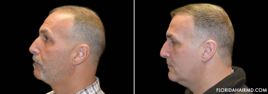 Before And After Hair Restoration Surgery In Flori