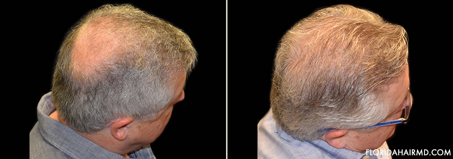 Before & After Hair Restoration Surgery In Florida
