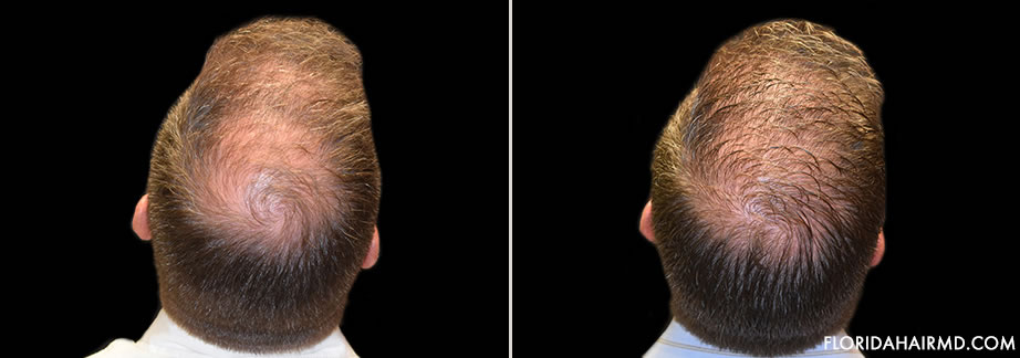 Hair Restoration Before And After Image