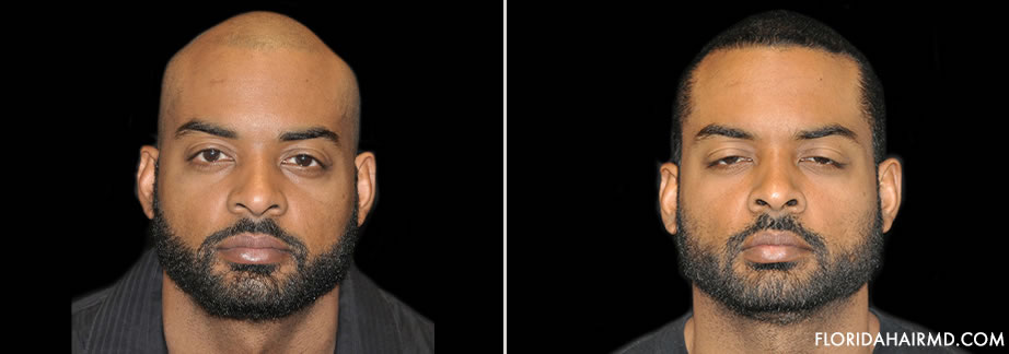 Before & After Image Of Hair Restoration