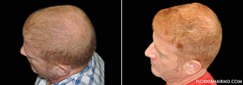 Hair Restoration Before And After Image In Florida