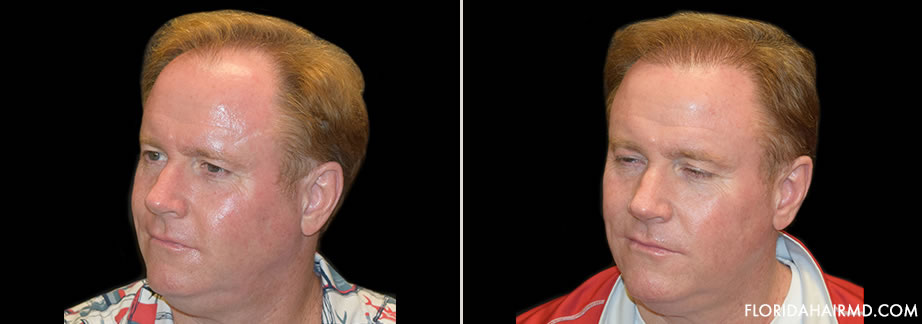 Before And After Image Of Hair Restoration In Flor