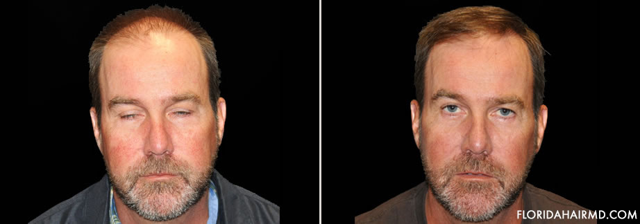 Before & After Image Of Hair Restoration In Florid