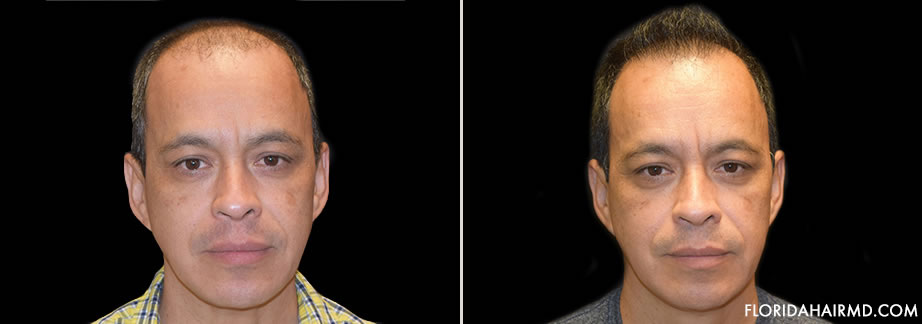 Hair Restoration Surgery Before And After Image