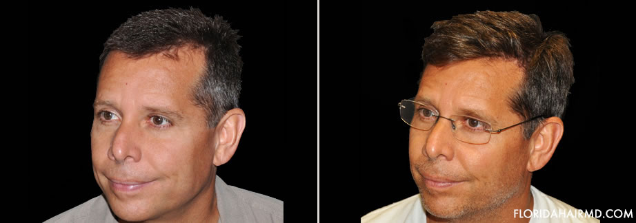 Before And After Image Of Hair Restoration Surgery