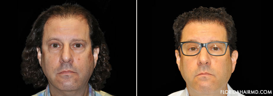 Before & After Image Of Hair Restoration Surgery