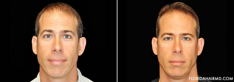 Hair Restoration Surgery Before & After Image In F