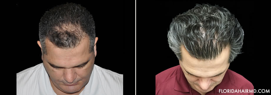 Before & After Image Of Hair Restoration Surgery I