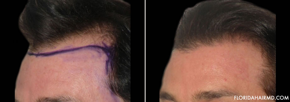 Before And After Photo Of Hair Restoration