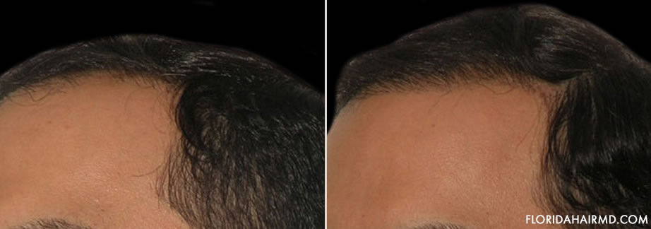 Before And After Photo Of Hair Restoration In Flor